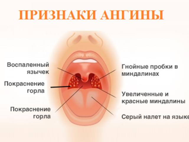 лечение ангины при беременности