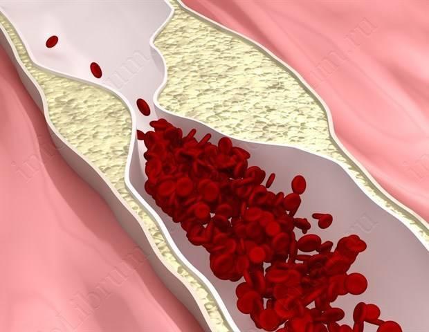 Рассеянный склероз и беременность: осложнения, последствия для плода, лечение - spuzom.com