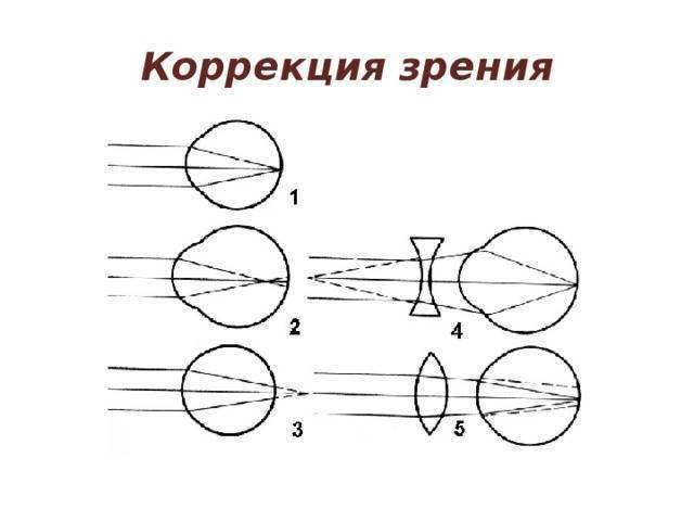 Лечение аномалий рефракции глаз по технологии доктора ромащенко.