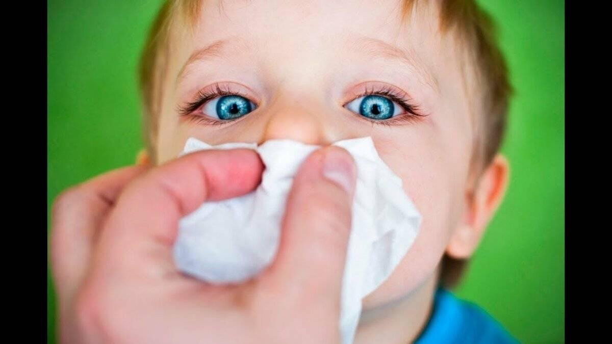 Как лечить затяжной насморк у ребенка
