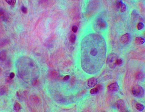Что такое протозойные инфекции?