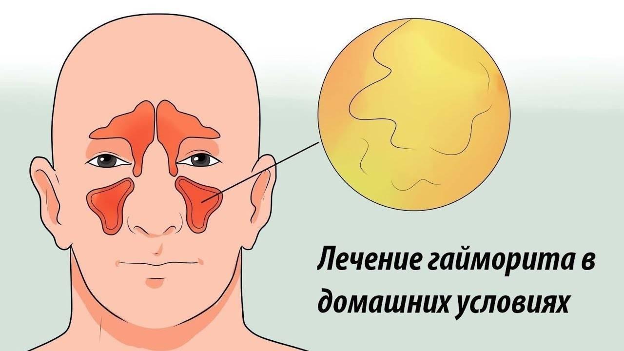 Как лечить гайморит дома: быстрые и эффективные лекарства