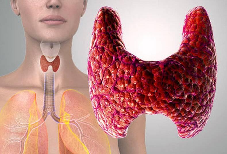 что такое кальцинаты в щитовидной железе