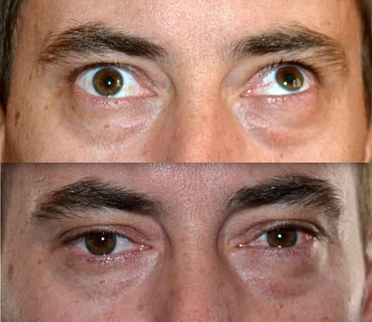 Удаление глаза