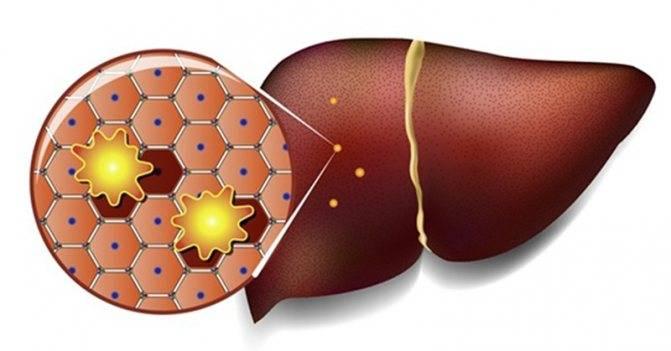 Лечение жирового гепатоза (стеатоза) печени