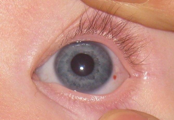 У ребёнка красные глаза без гноя: причины, фото, чем лечить органы зрения, если нет выделений, какие есть препараты для лечения