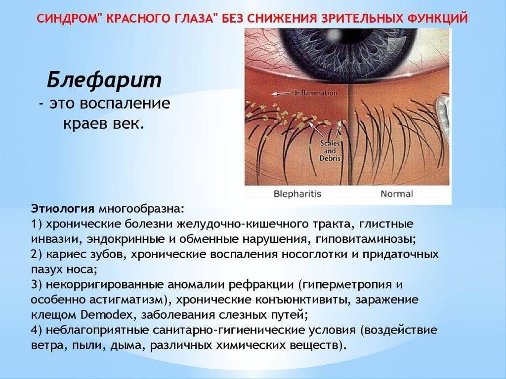 заболевание глаз блефарит