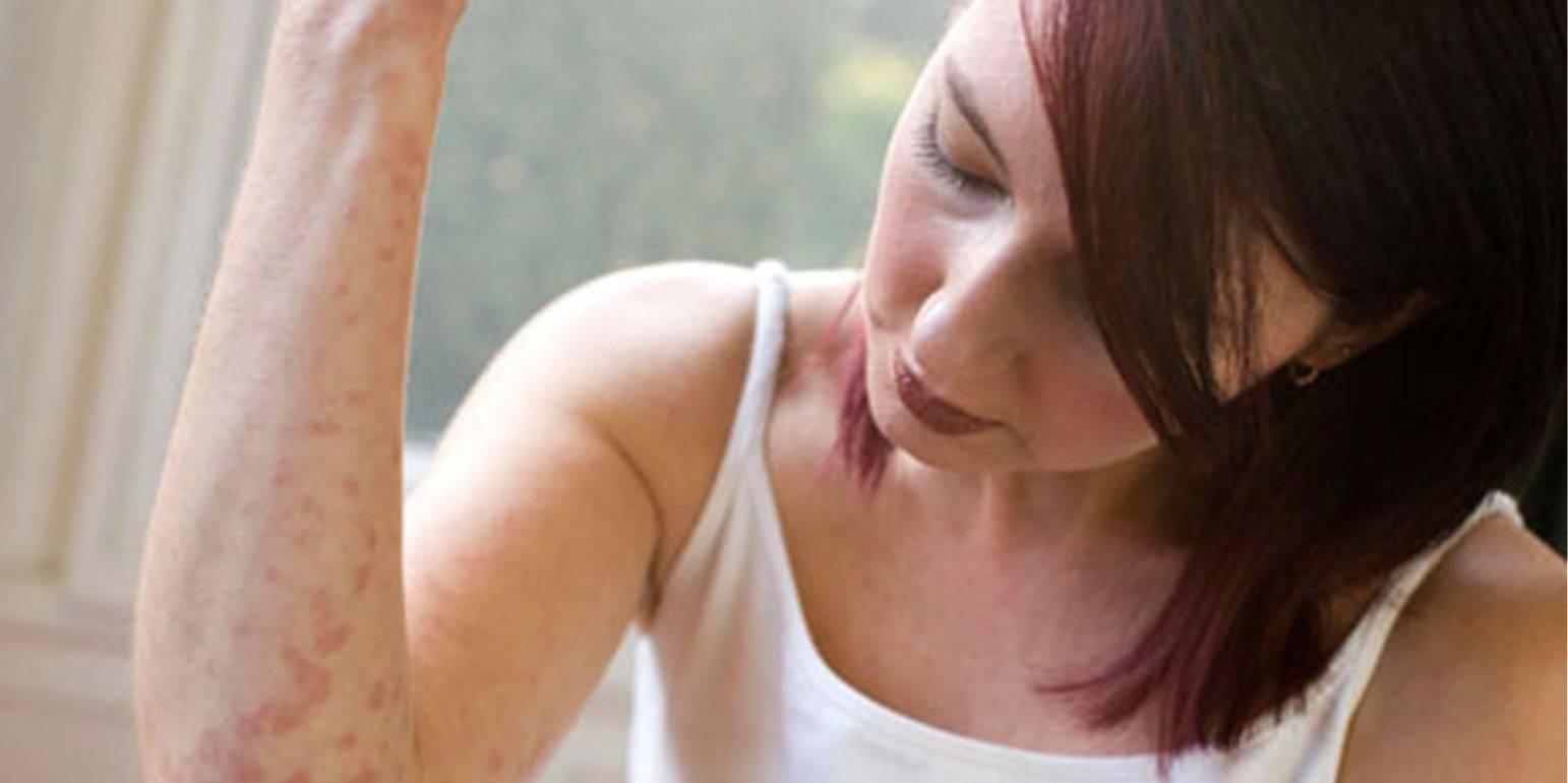 Как лечить описторхоз в домашних условиях и эффективность методов?