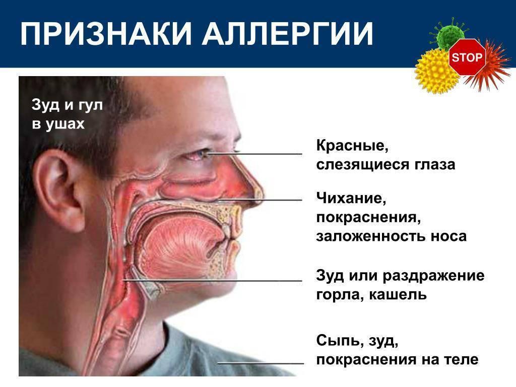 Почему чешется горло внутри и что делать при зуде