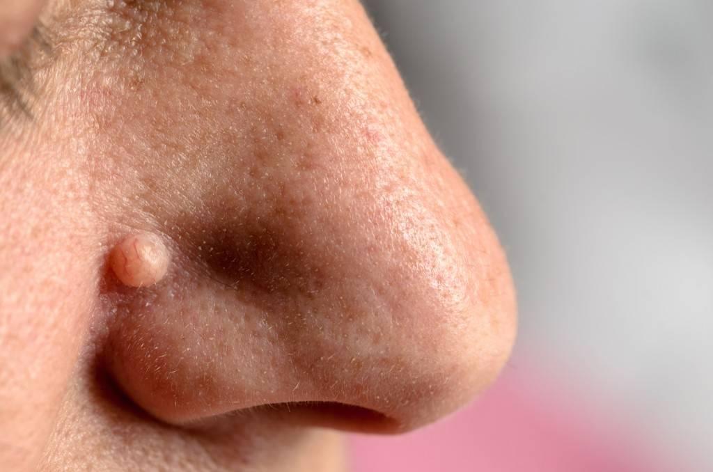 разные наросты на носу