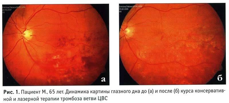Диагностика и лечение тромбоза центральной вены сетчатки и других сосудов глаза