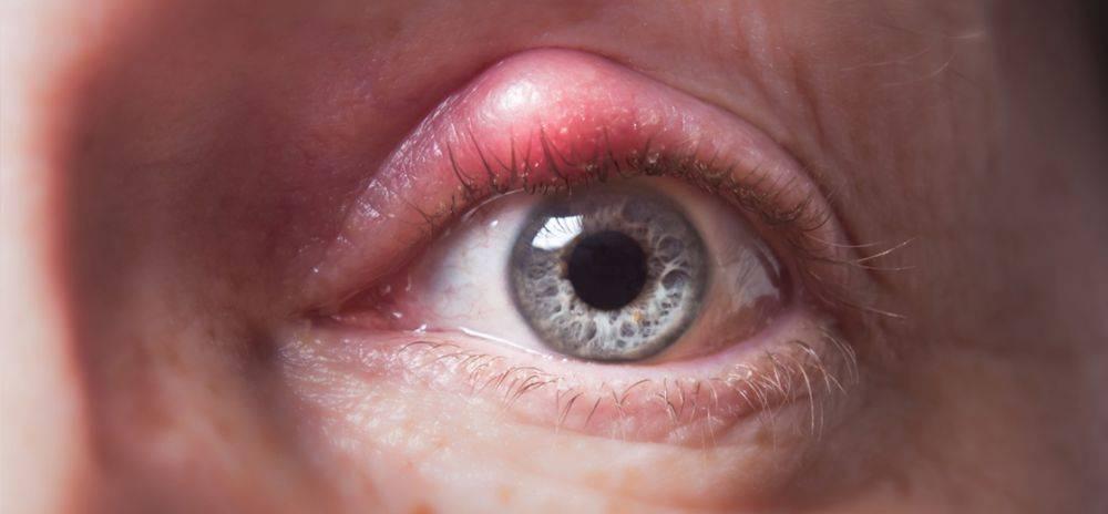 почему после сна красные белки глаз