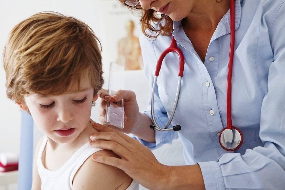 псориаз у ребенка симптомы