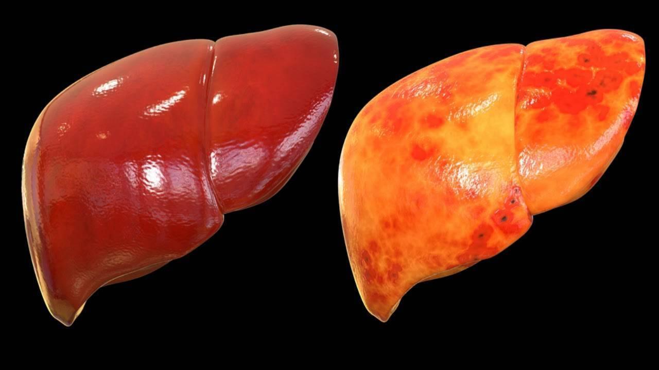 узи признаки жирового гепатоза