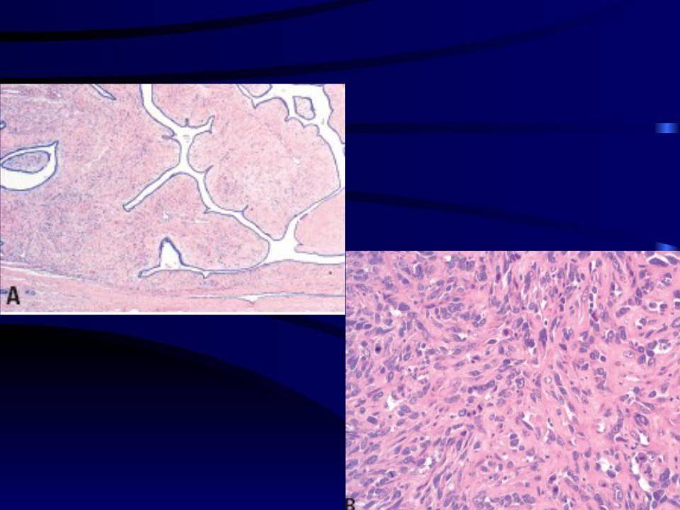 кальцинированная фиброаденома молочной железы