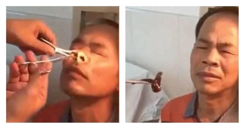 Ковырять козявки в носу