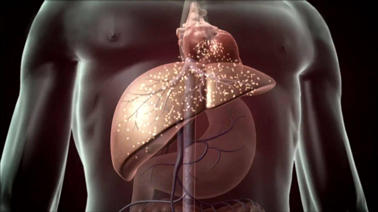 Цирроз печени: признаки, лечение, сколько с ним живут