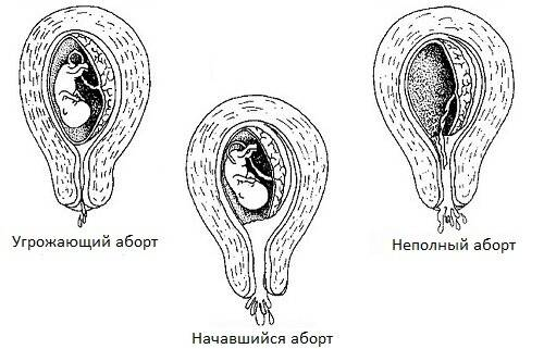 как избавиться от глистов беременной
