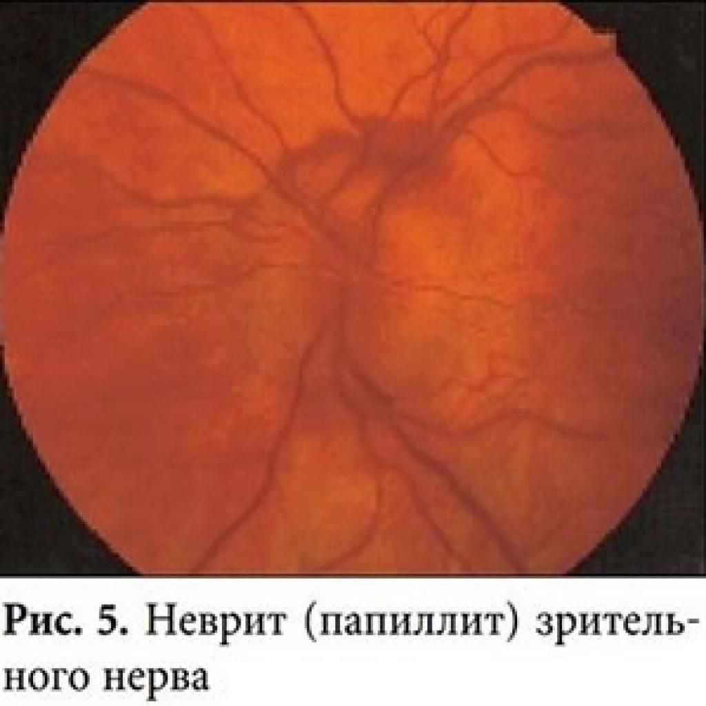 воспаление зрительного нерва лечение