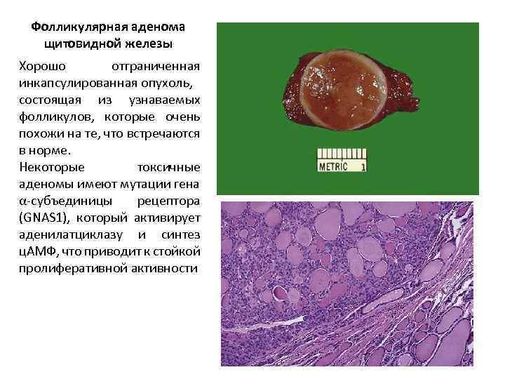 виды заболеваний щитовидной железы