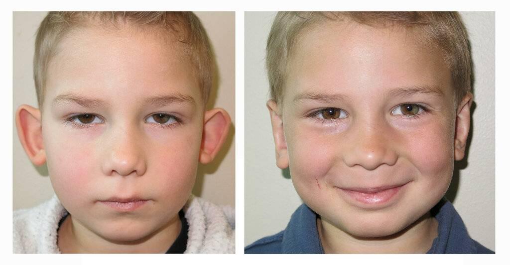 Оттопыренные уши – причины и диагностика лопоухости. как сделать, чтобы уши не торчали
