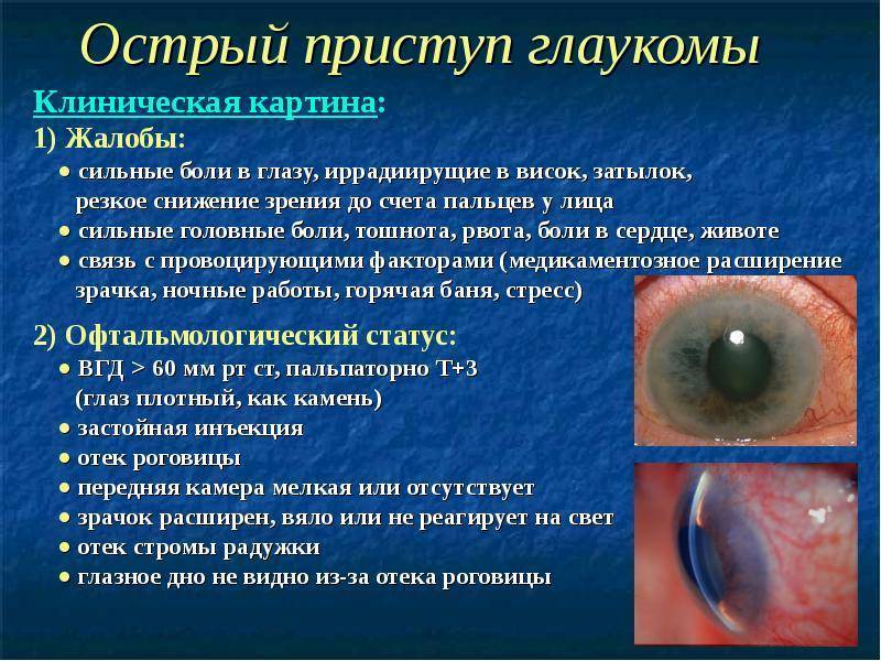 приступ глаукомы симптомы