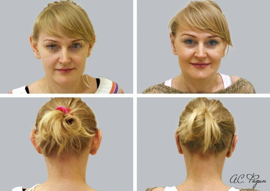 Отопластика - это операция по коррекции ушей: описание процедуры, отзывы