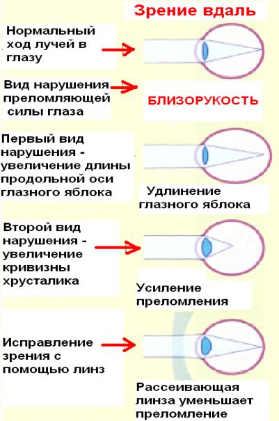 какие линзы используют при дальнозоркости