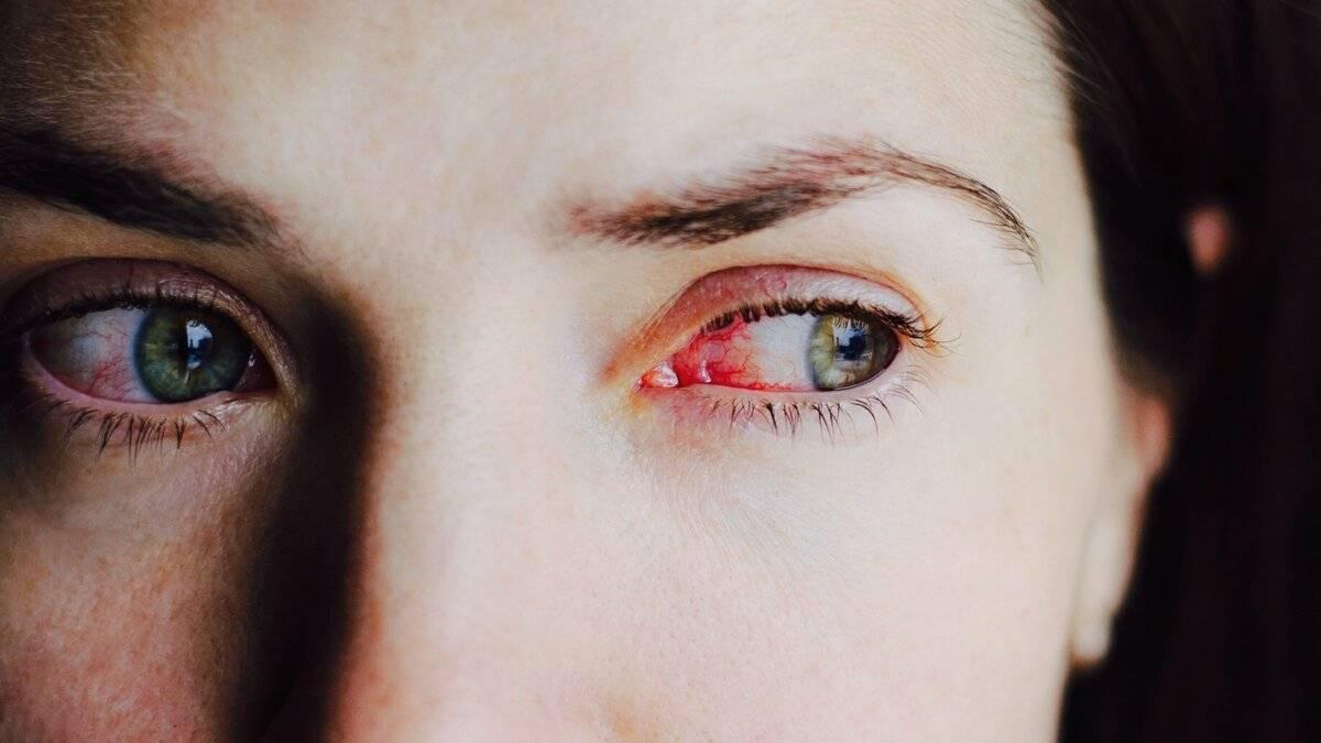 Сильно болит глаз покраснел и слезится
