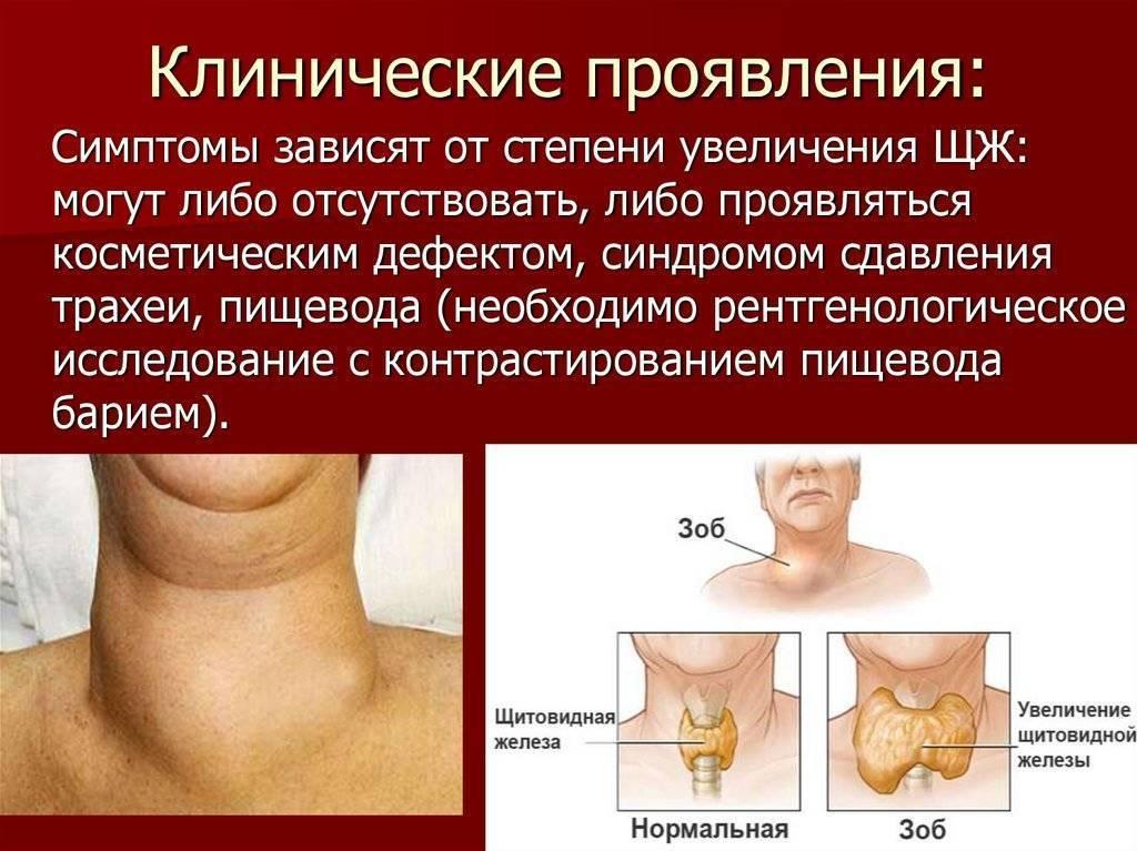 Диффузное увеличение щитовидной железы 2: диффузное, железы, лекарства, первые признаки, последствия, таблетки, увеличение, щитовидной