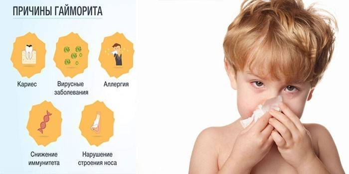 Признаки, симптомы и лечение гайморита у детей