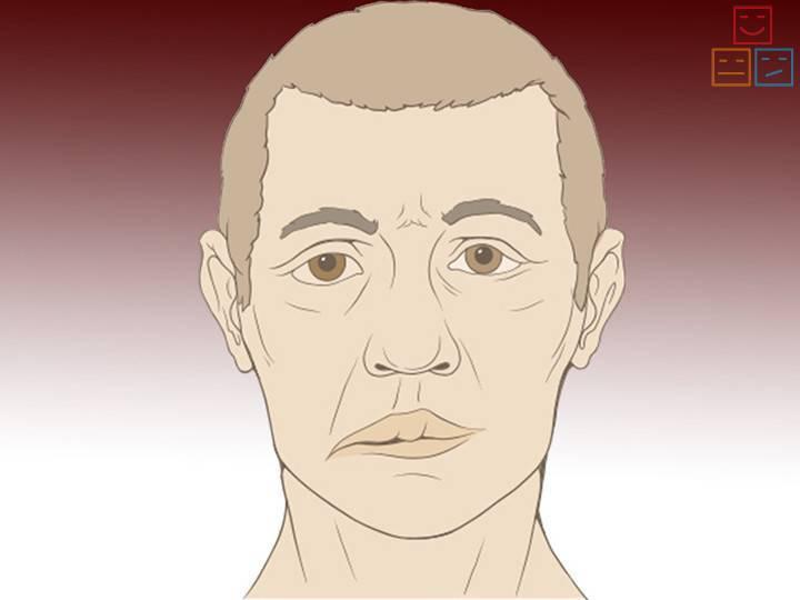 двухсторонний неврит лицевого нерва