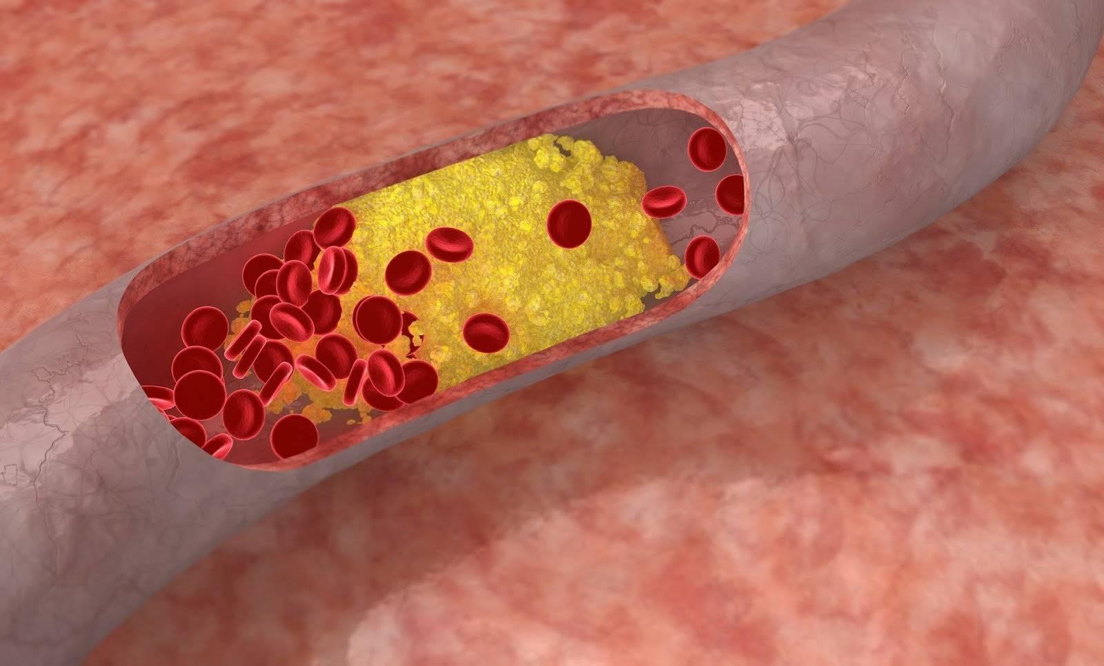Что такое атеросклероз сосудов и чем он опасен?