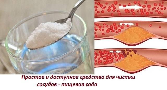 чем чистить сосуды от холестерина