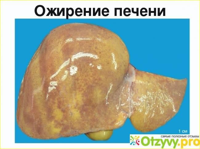 печень ожирение