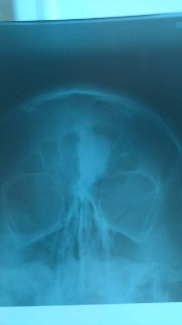 Симптомы и лечение остеомы лобной пазухи