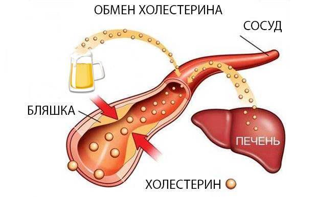 алкоголь и повышенный холестерин