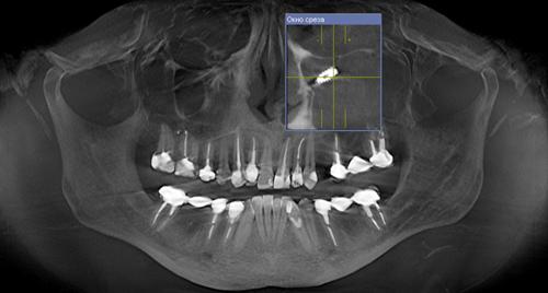 """Текст книги """"Топографическая анатомия и оперативная хирургия для стоматологов"""""""