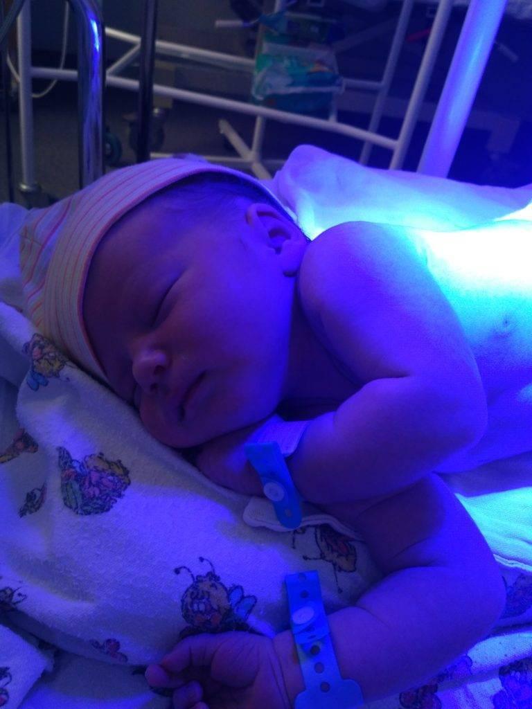 Лечение желтушки синей лампой. лампа при желтухе новрожденных — польза или вред