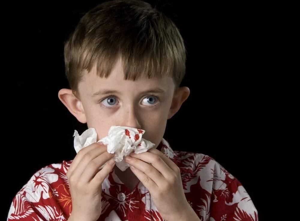 обильное кровотечение из носа