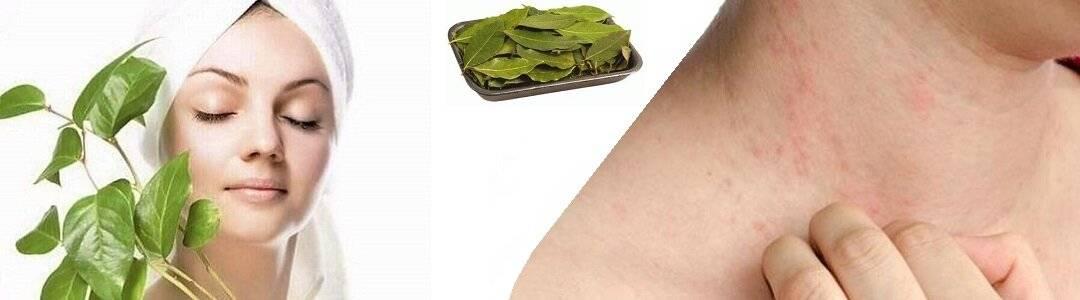 Псориаз. народные рецепты лечения. | лечение травами - народные средства