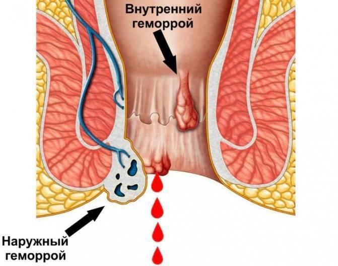 Как лечить геморройные шишки или геморроидальные узлы