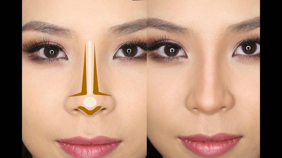 уменьшение крыльев носа