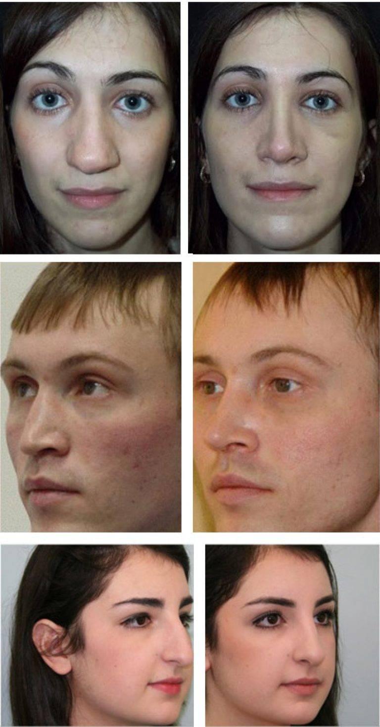 выровнять перегородку носа