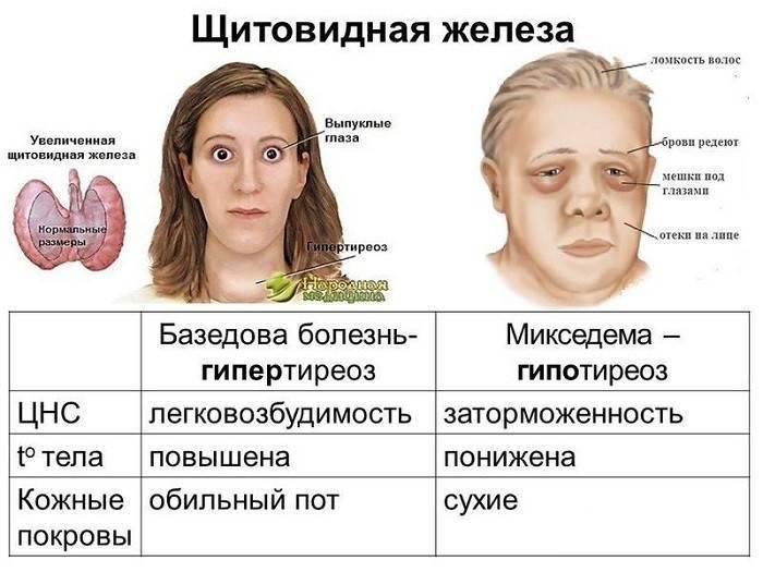 Уменьшение щитовидки лечение. причины уменьшения щитовидной железы и методика лечения у женщин