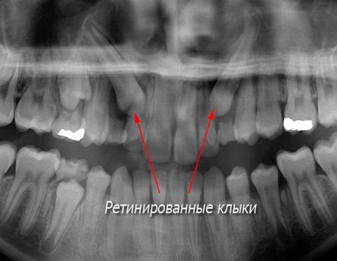 Гайморит и зубы - болят верхние пазухи носа - запись пользователя olga (ole4kaaa) в сообществе семейное здоровье в категории стоматология - babyblog.ru