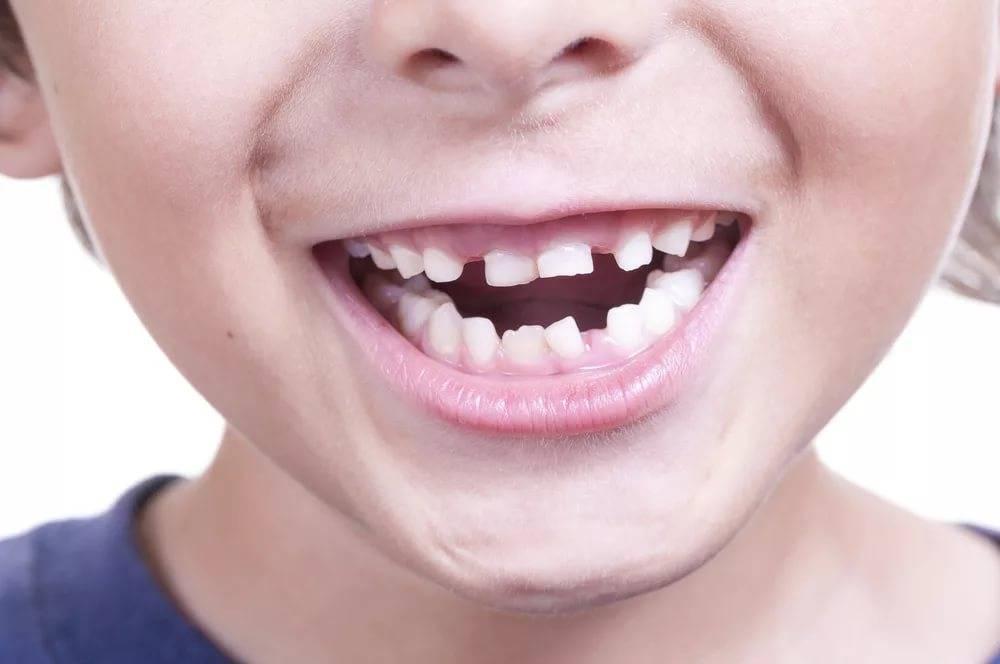 Неправильный прикус: последствия у взрослых, на что влияет асимметрия, берут ли в армию с глубоким, чем грозит для осанки, зубов