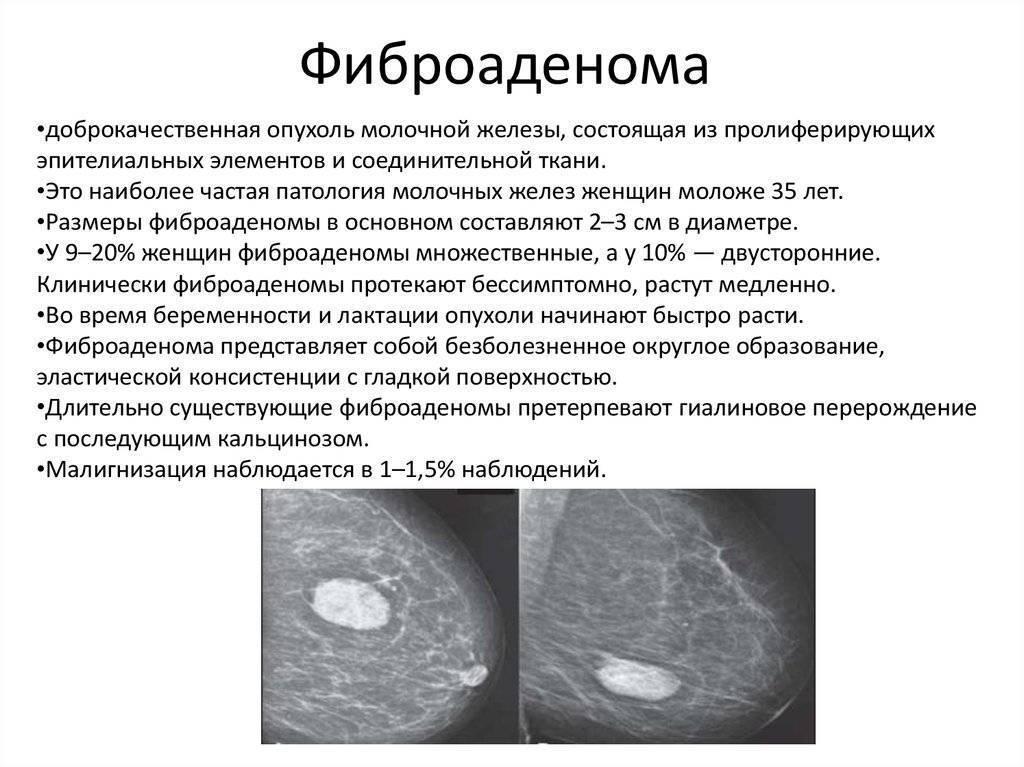 фиброаденома во время беременности