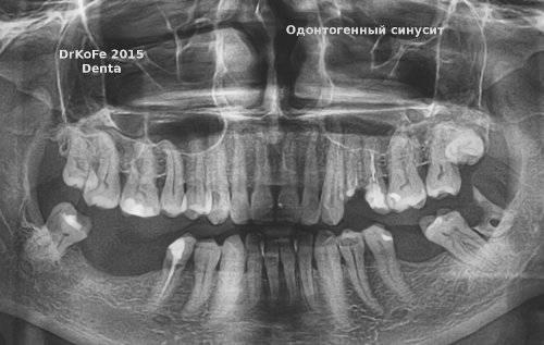 гайморит и зубы