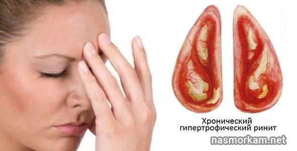 Лечение гипертрофического ринита, причины появления
